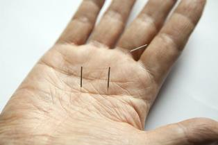 A quick-start instruction to Acupuncture.