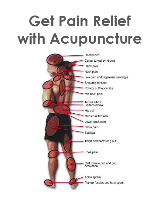 Acupuncture For Back Pain Relief?