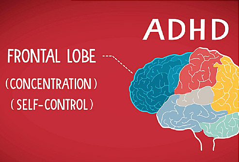 Why Deal With Adhd - 5 Ways Too Tackle