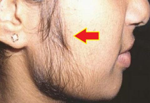 This remedy will Remove all the unwanted hair From the face