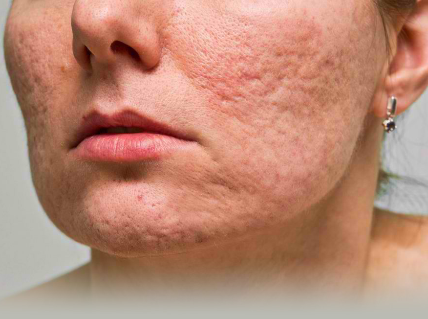 How To Get Rid Of Pimples: 5 Tips for Acne scar solution