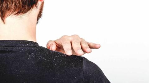 These Are The 10 Common Causes Of Dandruff